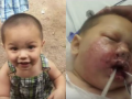 SWAT grenade blows up in baby's face during raid